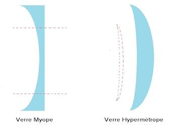 Concernant le verre hypermétrope, sa forme est convexe. L épaisseur se  trouve au centre et les bords sont très fins. 0063e76c6ba6